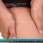 Menghilangkan Stretch Mark Berikut Obat Yang Bisa Digunakan - Mitrapost.com