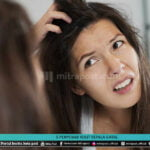 5 Penyebab Kulit Kepala Gatal - Mitrapost.com